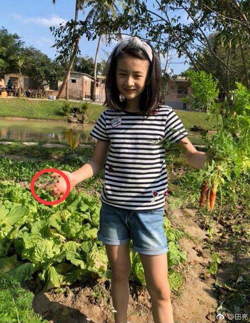 田亮晒森碟拔萝卜,但是她的手怎么了?