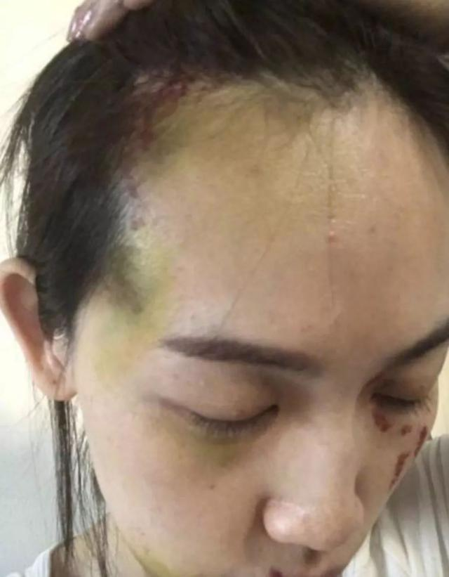 哈?她的伤口怎么又有了一个新版本?