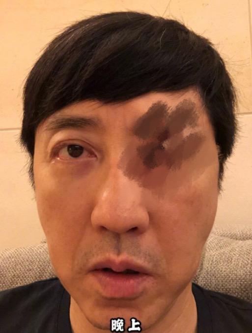 庾澄庆再晒眼睛受伤照,眼睛凸起红血丝布满眼球,画面吓人